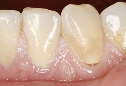 The color tone of your gums and mouth can be a sign of anemia.