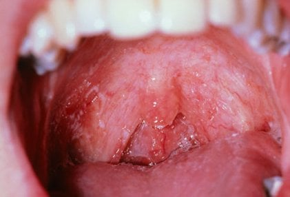HIV/AIDS can cause various mouth problems, including oral thrush and canker sores.