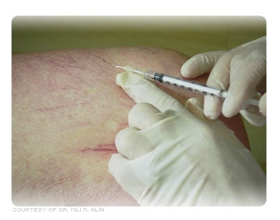 Picture of Spider Veins Being Treated with Sclerotherapy